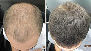 Ashley and Martin Hair Loss for Men